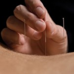 5 element acupuncture
